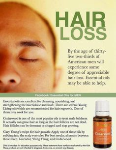 Alternate between Young Living essential oils, Cedarwood, Lavender and Ylang Ylang for best results. www.fb.com/HealingLotusWellness by flora