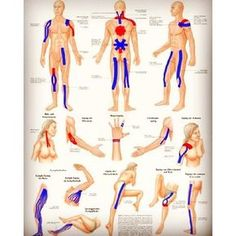 Taping Instructions Kinesiology tape is a flexible elastic tape providing supports to your body parts without the tape slipping.Kinesiology tape is a flexible elastic tape providing supports to your body parts without the tape slipping. Kinesio Tape, Kinesiology Taping, Pilates Workout, Fitness Pilates, Pilates Training, Pilates Yoga, Fitness Workouts, Pilates Video, K Tape