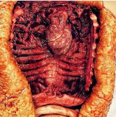 A great look at the inside of your thoracic cavity (chest wall)! 😱 Notice the presence of the heart, and the removal of esophagus, stomach, liver and lungs. Thoracic Cavity, Decomposed Body, Gore Aesthetic, Medical Astrology, Medical Pictures, Anatomy And Physiology, Medical Students, Human Anatomy, Pot Roast