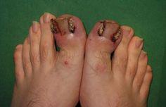 46 Best Ingrown Toenail images in 2014 | Toe Nails, Toenails ...