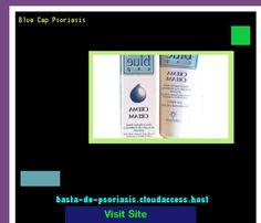 Blue Cap Psoriasis 230224 - Basta De Psoriasis!