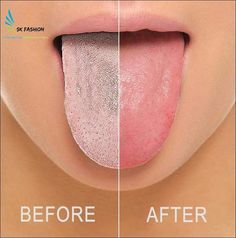 halitosis solution diy, Understanding the root cause and symptoms.What to do to eliminate it naturally. Self help remedies. Dental Health, Oral Health, Health Tips, Causes Of Bad Breath, Bad Breath Remedy, Health Routine, Mouthwash, Oral Hygiene, Dentistry