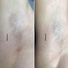 The popularity of skin bleachingin Miami – Liz Skincare Wellness & Beauty Blog #lizskincare #bodybleaching #skincare #beauty #beautyblogger #beautyinfluencer #wellness