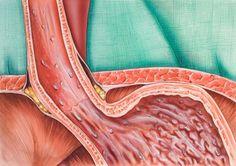 Alkaline-forming foods prevent acid reflux, heartburn, GERD and Barrett's Esophagus Gerd Symptoms, Heartburn Symptoms, Reflux Symptoms, Treatment For Heartburn, Home Remedies For Heartburn, Heartburn During Pregnancy, Reflux Baby, Acid Reflux Recipes, Gastroesophageal Reflux Disease