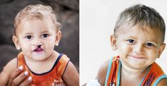 Sweet, little Francisco before and after cleft lip surgery. His life will never be the same!