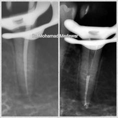 Lower premolar with apical ramification #endodoncia #endodontia #endodontics #endodontic #rootcanal #rootcanals #rootcanaltreatment #endodontist #rct #beirut #kuwait #savingteeth #dentist #dentistry @dental8clinic #dental8_clinic #dental8clinic #dentalmicroscope #microendodontics #revos #micromega by dr.medawar.endodontics Our Root Canals Page: http://www.lagunavistadental.com/services/general-dentistry/root-canals/ Other General Dentistry services we offer…