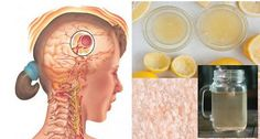 Simple Drink That Makes Your Migraine Disappear in 10 Minutes