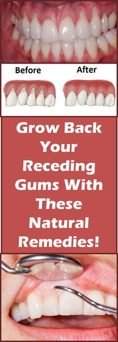 If you are experiencing receding gums then you have found a great article to read. In this article you will find 9 of the best home natural remedies t...