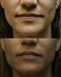 Bumpy uneven skin tone?  No problem!  GET IT ----->johnnyray.nerium.com