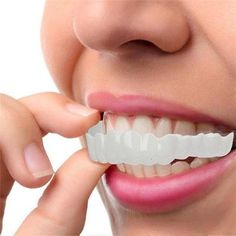 Perfect Smile Snap-On Braces - Upper Teeth Perfect Smile Teeth, Veneers Teeth, Safe Cosmetics, Teeth Braces, Stained Teeth, Hair Toppers, Magic Hair, White Teeth, Teeth Whitening