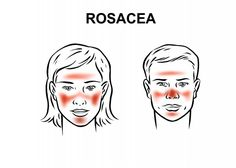 Did you know that April is National Rosacea awareness month? We teach our students how to apply corrective makeup to skin conditions like . Best Anti Aging, Anti Aging Skin Care, Essential Oils For Eczema, Las Vegas, Corrective Makeup