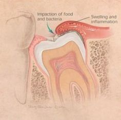 Wisdom teeth may not need to be removed if they are: HealthyWisdom teeth may not need to be removed if they are: Healthy Grown in completely (fully erupted) Positioned correctly and biting properly with their opposite teeth Able to be cleaned as part of daily hygiene practices Many times, however, wisdom teeth — the third molars in the very back of your mouth — don't have room to grow properly and can cause problems. Erupting wisdom teeth can grow at various angles.