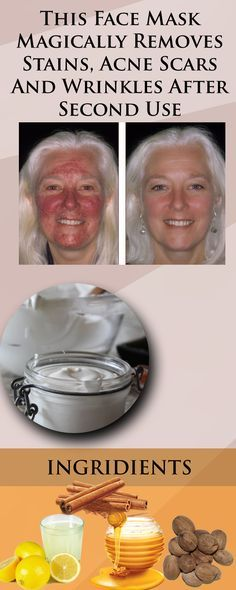 This is an amazing face mask that will help you eliminate the stains, the wrinkles and the acne scars.
