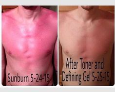 It Works Toner and defining gel is great for sunburn! One day later! Great to keep on hand for summer! Call or text 520-840-8770 http://bodycontouringwrapsonline.com/uncategorized/it-works-defining-gel