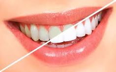 Over the counter, teeth whitening products can cause harm to the gums and teeth, so it's better to trust Dr. Dean Salo for all of your teeth whitening Los Angeles needs.