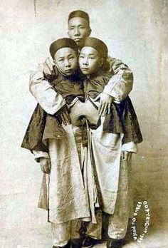 The longest surviving conjoined twins on record. Liou Seng-Sen and Liou Tang-Sen with their father in 1905