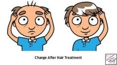 Do you want to see the change in your look? Marmm is giving you the chance to get rid of baldness, hair fall problem, hair loss, white hairs etc..