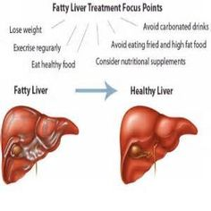 Review of the Fatty Liver Solution.