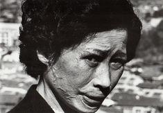 """Hibakusha Tsuyo Kataoka, Nagasaki"" (1961) by Shomei Tomatsu Woman with Keloidal scars. Gelatin silver print"