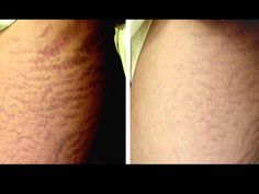 Derma Roller for Stretch Marks: Before & After Results
