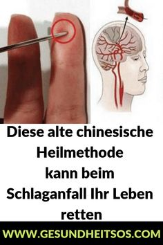 This ancient Chinese healing method can help you .- Diese alte chinesische Heilmethode kann beim Schlaganfall Ihr Leben retten This ancient Chinese healing method can save your life if you have a stroke - Fitness Workouts, Skincare Logo, Natural Acne Remedies, Improve Blood Circulation, Save Yourself, Health Fitness, Chinese, Skin Care, Canning
