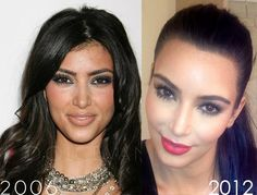 Kim Kardashian. She has a lot of makeup contouring so it's hard to tell, but if I had to guess I would say a nose job and a lot of filler, especially around her mouth. And of course Botox. lt.