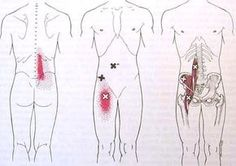 Psoas muscle & Trigger Point Pain Pattern - Low Back Pain