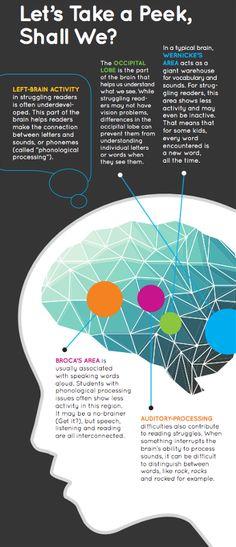A Peek Inside the Struggling Reader's Brain
