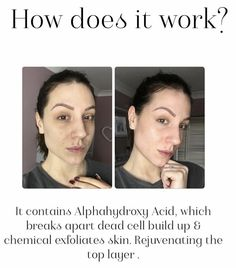 Natural Glow, Natural Skin, Chemical Face Peel, Aha Peel, How To Exfoliate Skin, Does It Work, Total Body, Science And Technology, Nu Skin