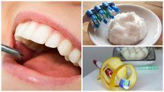6 rimedi fatti in casa per rimuovere il tartaro accumulato sui denti