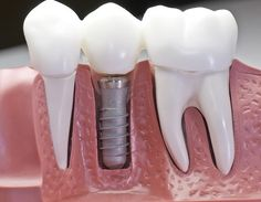 Что такое «имплантация зубов под ключ»?…