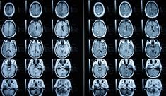 Una molécula del cardo mariano ayuda a combatir la metástasis cerebral  ||  Científicos españoles del CNIO logran alargar la vida de pacientes gracias a la silibinina https://www.levante-emv.com/vida-y-estilo/salud/2018/06/11/molecula-cardo-mariano-combate-cancer/1730405.html
