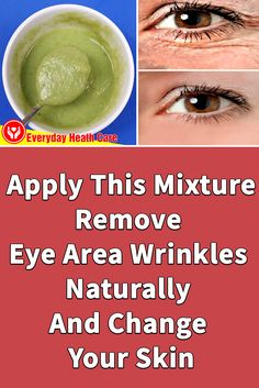 This mixture will help you remove eye wrinkles effectively. You will soon have smooth and youthful skin Eye Wrinkle Treatment, Natural Wrinkle Remedies, Dry Skin Remedies, Health Remedies, Under Eye Wrinkles, Anti Ride, Moisturizer For Dry Skin, Wrinkle Remover, Beauty Hacks