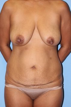 Before tummy tuck and breast lift - click to see her amazing transformation!