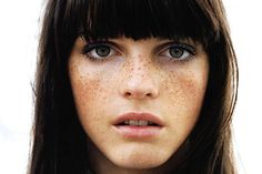 As sardas nada mais são do que aquelas pintinhas amarronzadas que surgem em pessoas de peles muito claras. As sardas costumam dar seus primeiros sinais na pele