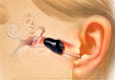 Hearing Sol Hearingsol Profile Pinterest