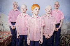 Picture of blind Indian boys with albinism
