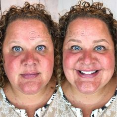 Microblading, Indiana microblading, eyebrows, 3D brows, Indy Microblading