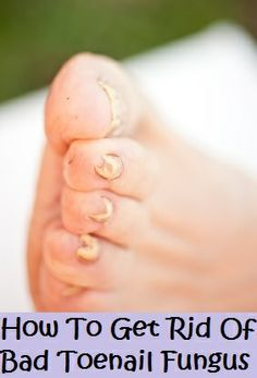 Diy remedies for foot fungus by magazinez pinterest remedies how to get rid of bad toenail fungus treatments topical creams and remedies to treat and cure a toenail fungal infection once and for all solutioingenieria Gallery