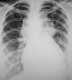 TAPVR (a) Type I TAPVR.  Chest radiograph obtained in a neonate (b the same as a with a superimposed drawing) reveals the classic snowman sign, sometimes referred to as a figure-of-eight sign.