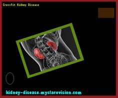 Crossfit Kidney Disease 102258 - Start Healing Your Kidneys Today!