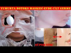 EVDE BOTOKS !! SADECE 2 DOĞAL MALZEME İLE YÜZ GERME #KırışıkGiderenMaske #YumurtaMaskesi #YüzGerme - YouTube Beauty Care, Beauty Skin, Beauty Hacks, Skin Tag Removal, Hair Removal, Face Home, Weight Loss Water, Anti Aging Treatments, Wrinkle Remover