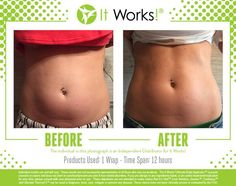 Buy It Works Skinny Wraps - ItWorks Body Applicator It Works Wraps, Fitness Before And After Pictures, Natural Skin Tightening, Ultimate Body Applicator, It Works Products, Body Products, Weight Loss Pictures, 90 Day Challenge, Crazy Wrap Thing