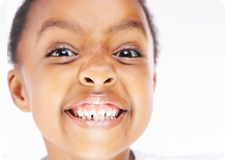 The National Institute of Dental and Craniofacial Research recently found 42 percent of children ages 2 to 11 have had some form of tooth decay in their primary teeth and 23 percent of those have been untreated.