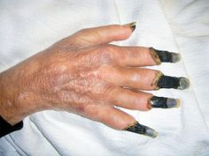 Gangrene Causes, Treatment, Symptoms And Risk Factors Trauma, Human Oddities, Medical Field, Medical History, Medical Conditions, Human Body, In This World, Herbalism, Creepy
