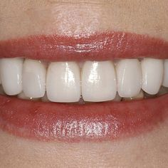 #CosmeticDentistry #Hertford #DentalVeneers #London #TeethWhitening #Ware #BishopsStortford #Essex #Harlow by perfectsmile Our Cosmetic Dentistry Page: http://www.myimagedental.com/services/cosmetic-dentistry/ Google My Business: https://plus.google.com/ImageDentalStockton/about Our Yelp Page: http://www.yelp.com/biz/image-dental-stockton-3 Our Facebook Page: https://www.facebook.com/MyImageDental Image Dental 3453 Brookside Road Suite A Stockton CA 95219 (209) 955-1500 Mon - Fri: 8am - 5pm…