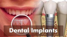 Dental #Implants www.click4teeth.com/implant-dentist-winchester-dr-steve-larcombe/