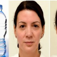 SHOCKING TRUE ! ENGLISH WOMAN DRINKS 6 LITERS OF WATER EACH DAY FOR ONE MONTH! LOOK AT HER FACE BEFORE AND AFTER!