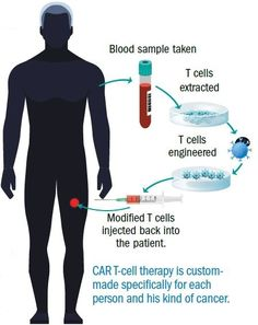 hypnotherapy a way to fight cancer In this type of immunotherapy, a patient's immune cells are removed from the body and genetically altered to help them fight cancer they're multiplied in the lab and then fed back into the person's body, like a transfusion, unleashing them on the cancer.