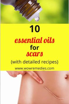 Here are the best essential oils for scars. These oils will reduce acne scars, keloids, cuts and scrapes, and surgical scars.